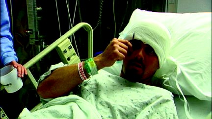 Breckenridge Man Goes Six Days With Nail In His Head