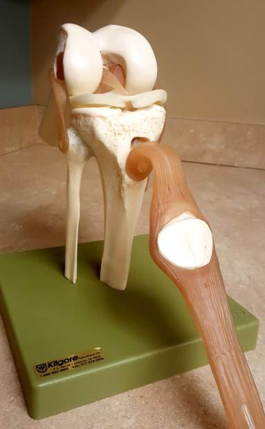 KneeHab: Anatomy of an ACL injury, from Grade I to Grade III ...