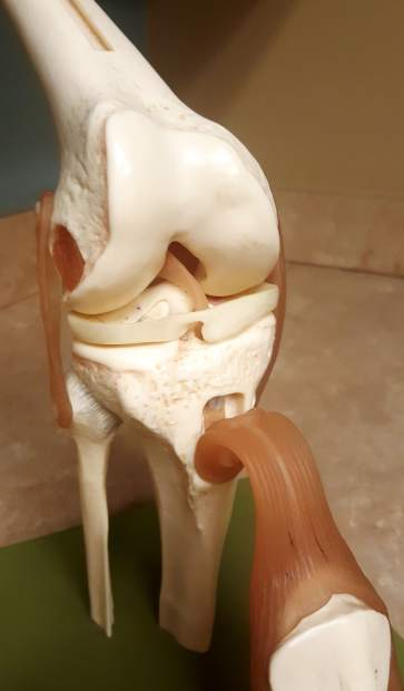 Kneehab Anatomy Of An Acl Injury From Grade I To Grade Iii