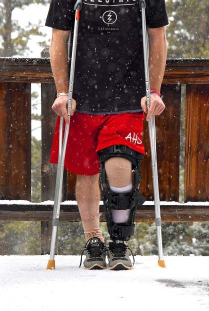 cdc0410afd The author in a full-leg knee brace one week after ACL and meniscus surgery.  Crutches are mandatory for the first six weeks while the menisci heal.