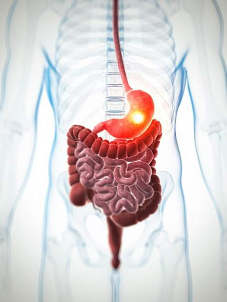 gastroparesis a digestive disorder essay Gastroparesis gastroparesis is a digestive disorder in which the motility of the stomach is either abnormal or absent gastro means stomach and.